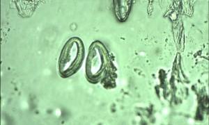 Mala dječja glista (Enterobius vermicularis)