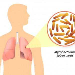 Svjetski dan borbe protiv tuberkuloze - 24. ožujka