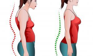 Nepravilno držanje i skolioza